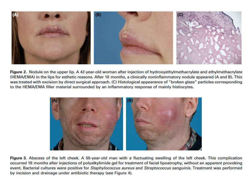 Delayed-Onset Complications of Facial Soft Tissue Augmentation with Permanent Fillers in 85 Patients